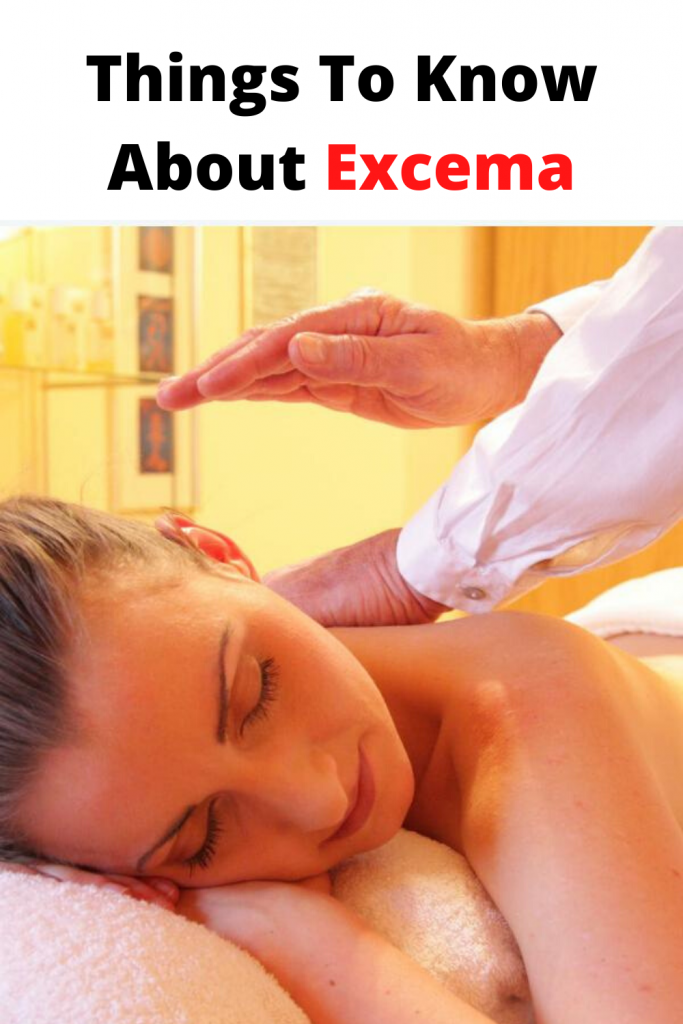 dealing with excema